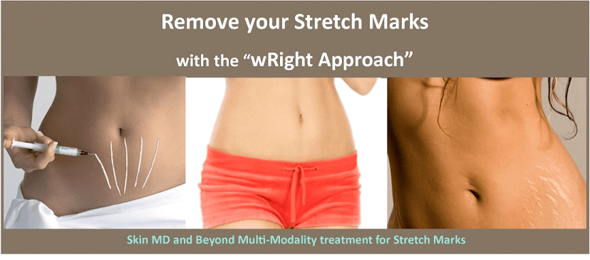 Scars and Stretch Marks