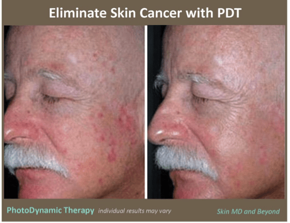 Photodynamic Therapy Plano Tx Pdt Frisco Tx Acne