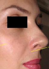 Patient # 41453 After Photo # 2