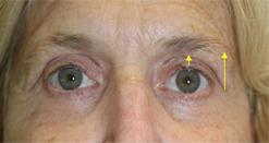 Patient # 52647 After Photo # 2