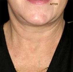 Patient # 93842 After Photo # 2