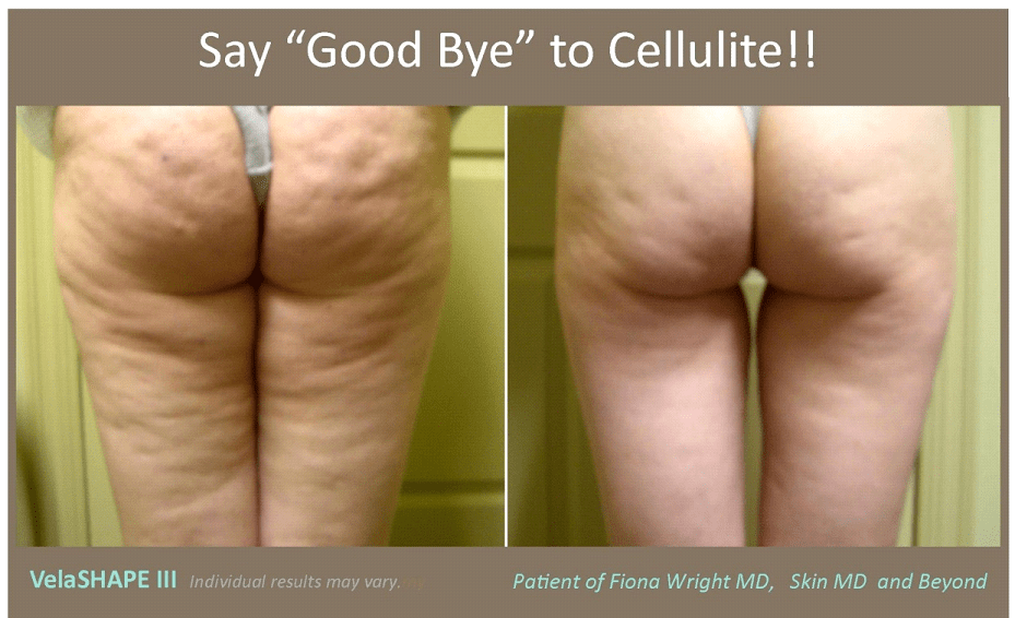 Cellulite Removal in Plano, TX