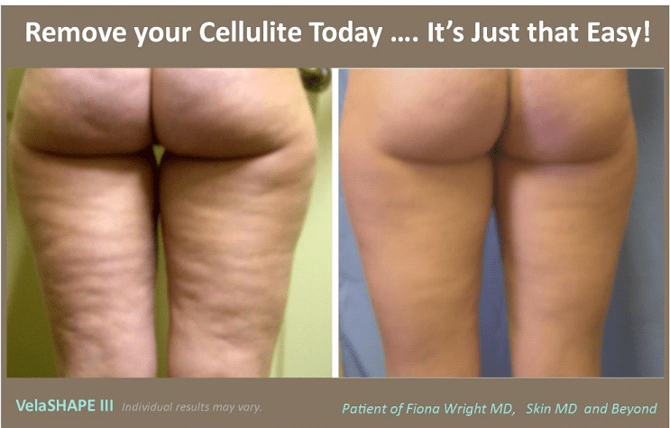 VelaShape to Remove Cellulite in Plano, TX