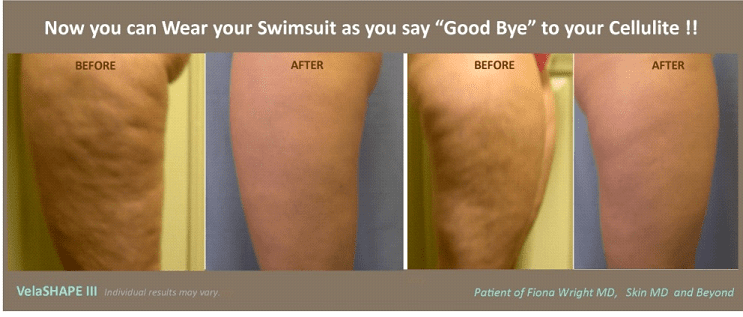 Cellulite Treatment in Plano, Texas