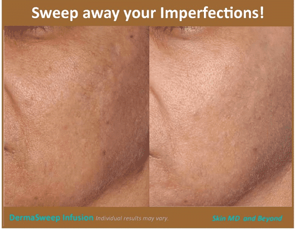 CHEEK REJUVENATION