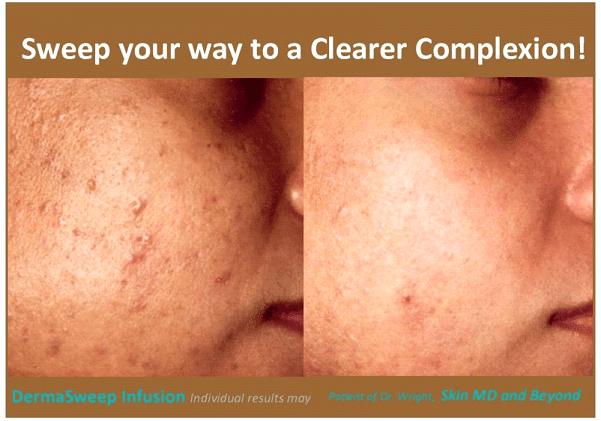 clear complexion plano tx