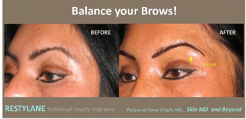 Eyebrow Droop