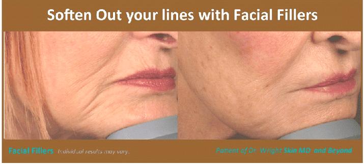 Facial Fillers (2)