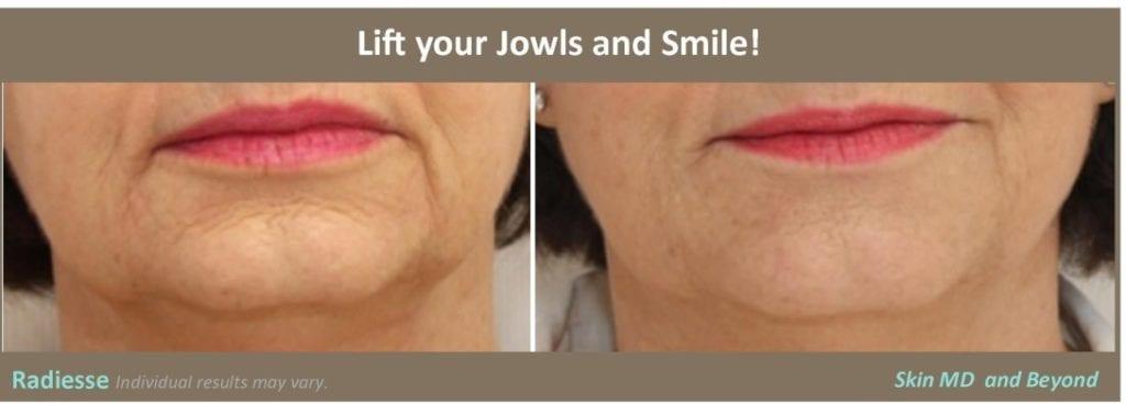 jowl-lift-contour