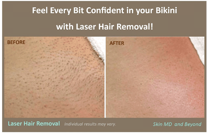 removal line bikini hair pictures Laser