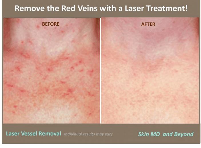 Laser Vein Removal