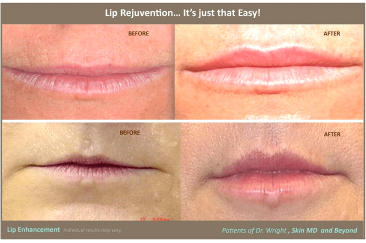 Lips - Cosmetic Skin Care Specialist Plano, TX