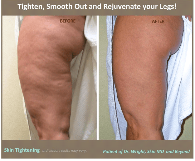 Skin Tightening Treatment Plano Tx Body Contouring