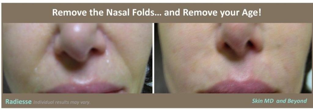 nasal-folds