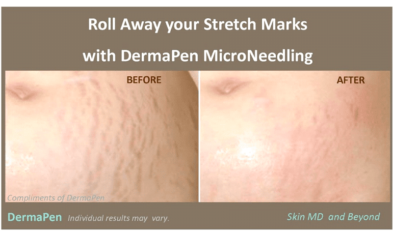 Stretch Marks Treatments Plano, TX | Scar Treatment | Skin