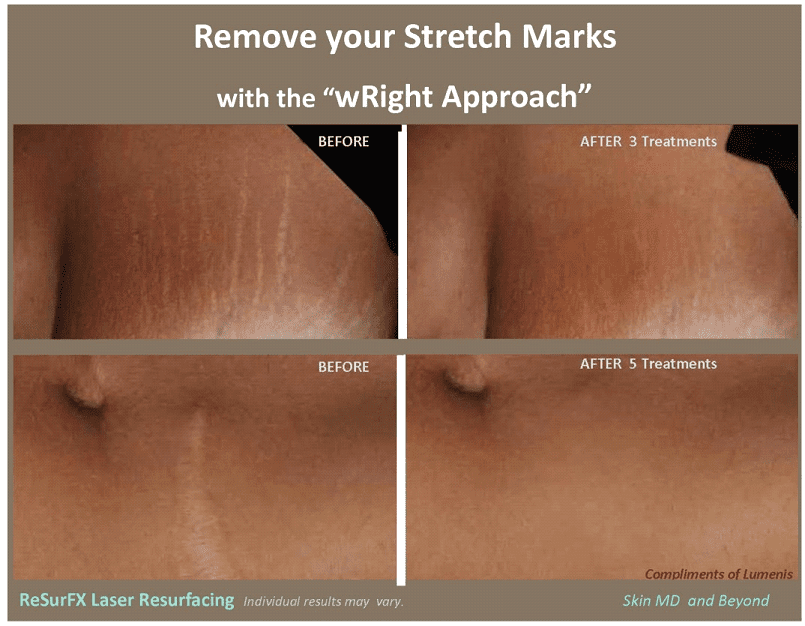 fractional laser for stretch marks