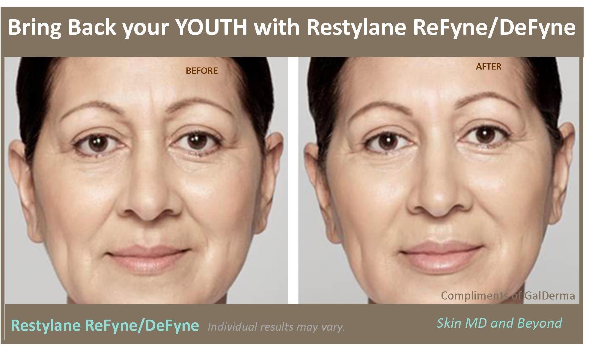 Restylane ReFyne Plano TX