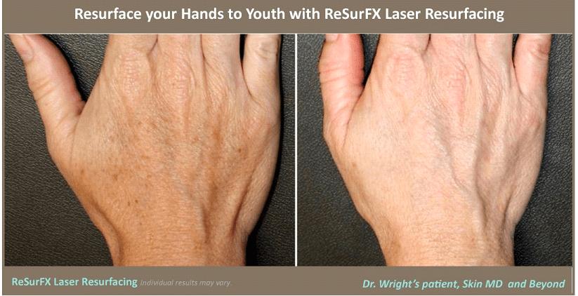 ResurFX Laser Resurfacing
