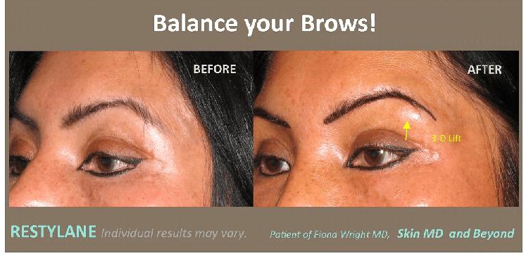 balance brows