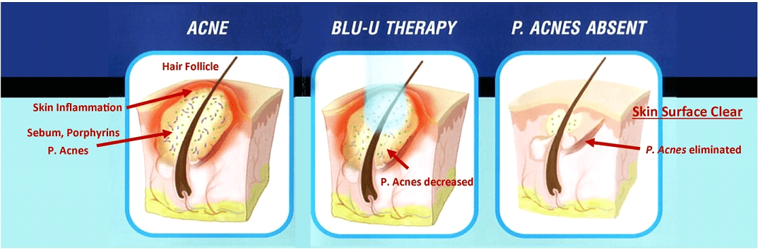 Blu U Therapy For Acne In Plano Tx Acne Treatment