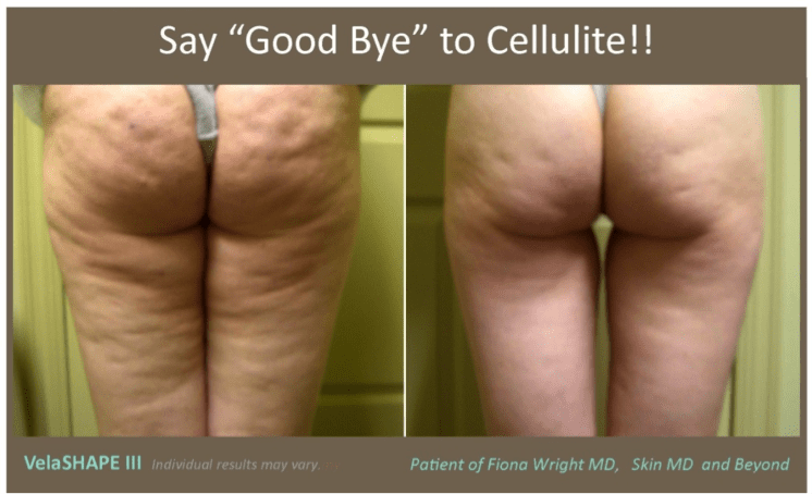 A before and after image of a woman that underwent cellulite treatment with VelaSHAPE III