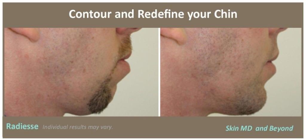 chin-contouring