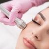 MICRONEEDLING Plano and Frisco TX