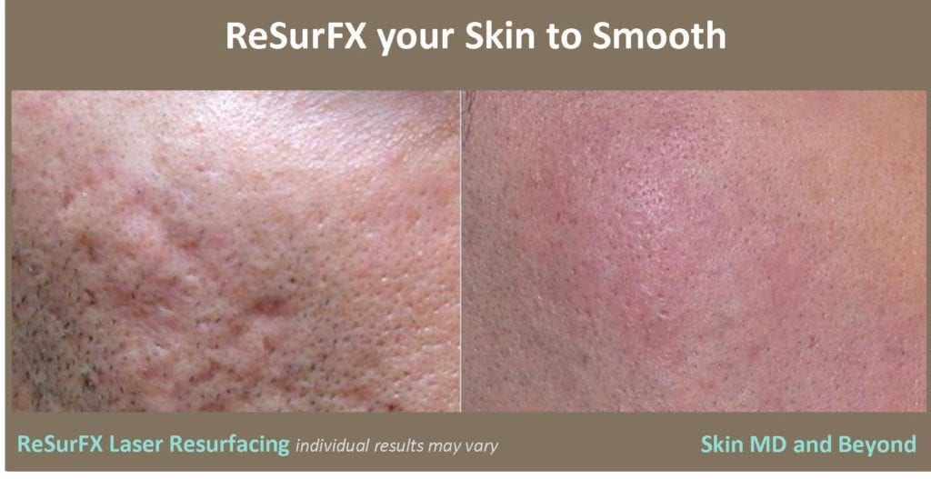 Laser Skin Resurfacing Plano TX