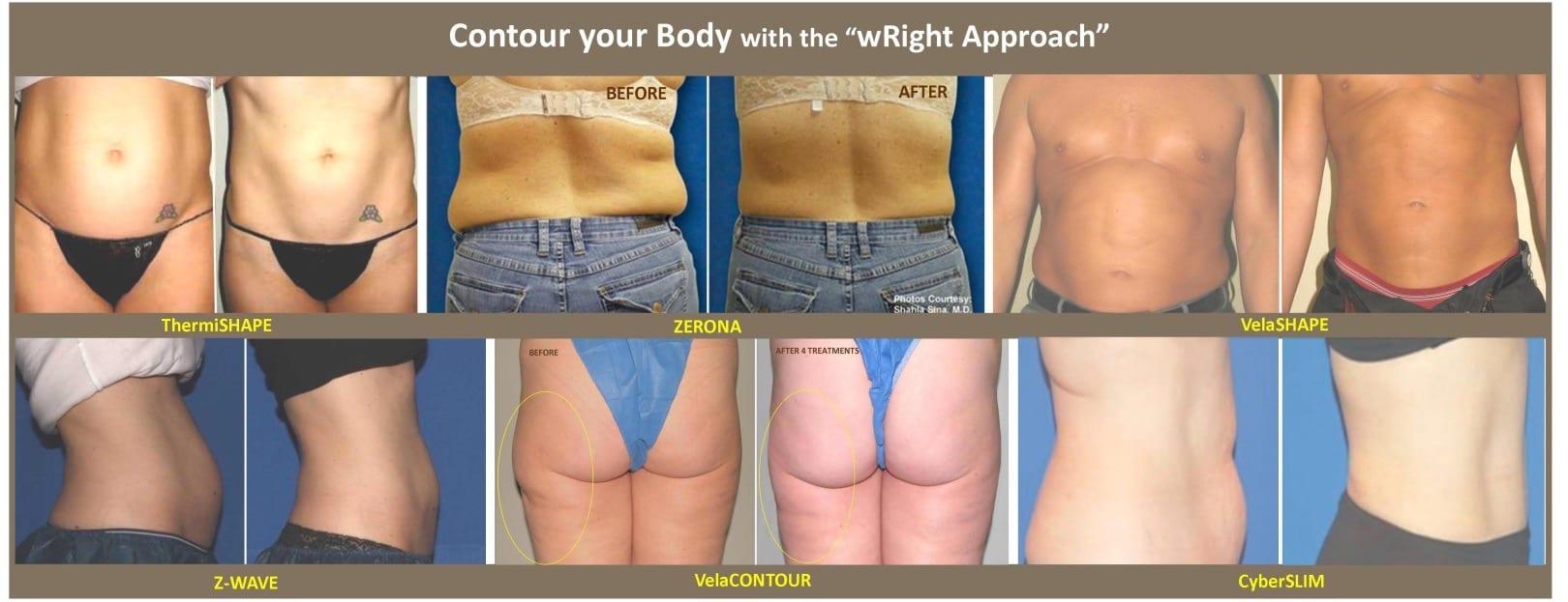 Body Contouring Plano Tx Fat Reduction Frisco Tx Skin