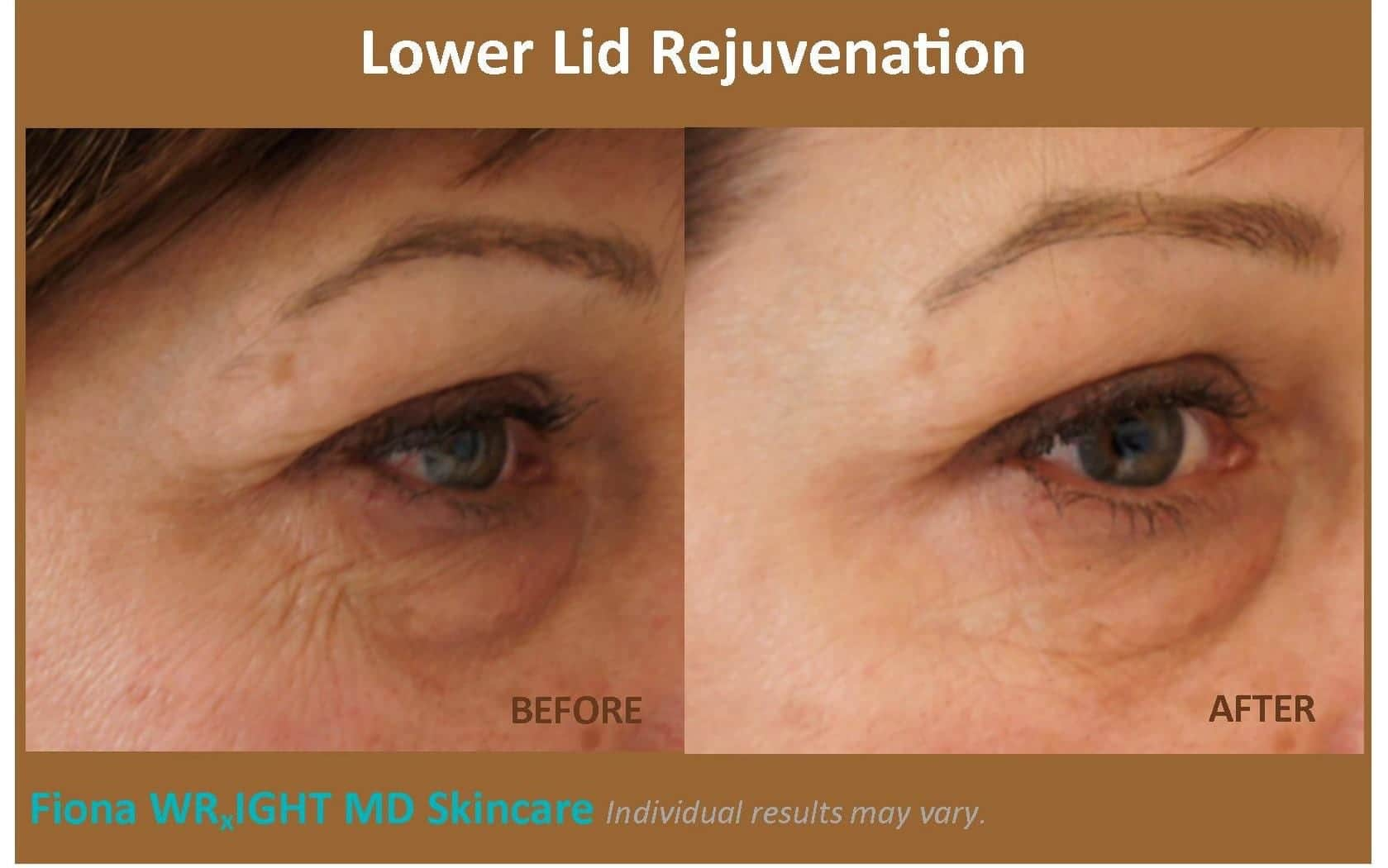 Eye Rejuvenation Plano, TX | Crow's Feet & Eye Bag Removal