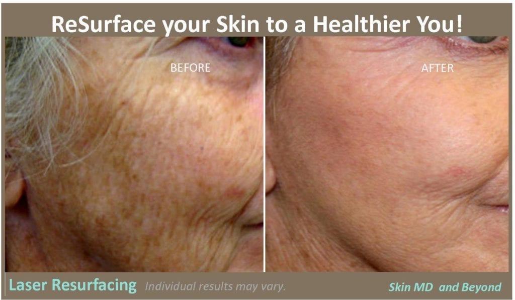 ReSurface Laser skin Plano TX