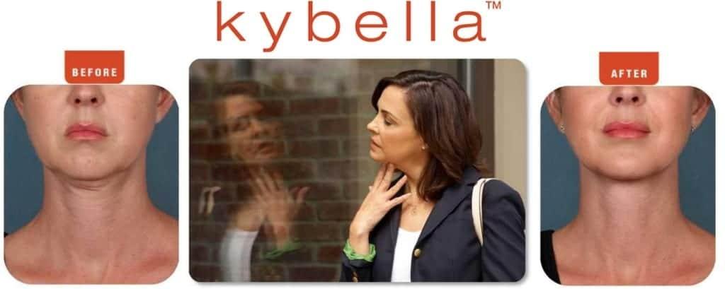 kybella plano tx