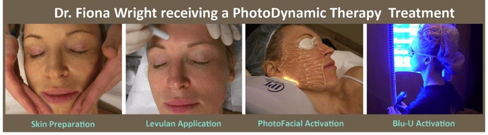 Photodynamic Therapy Plano Tx Pdt Frisco Tx Acne