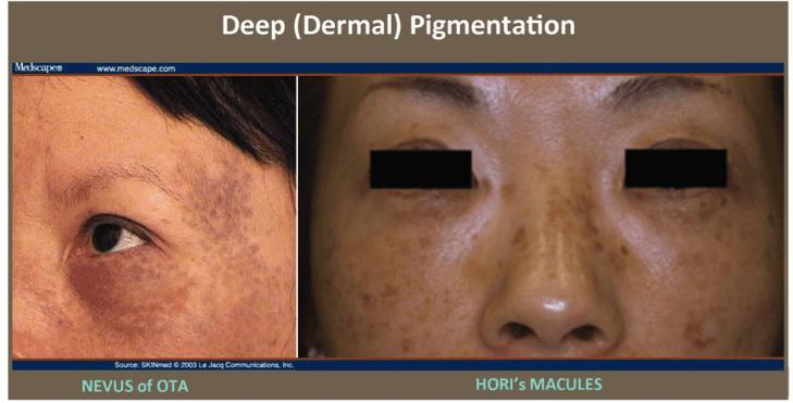 Pigmentation Cosmetic Skin Care Specialist Plano Tx